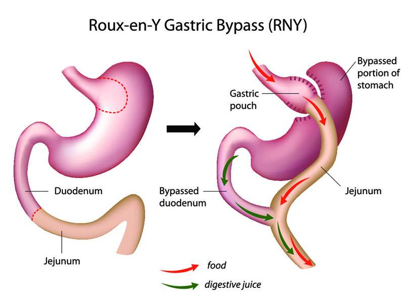 The Gastric Bypass Surgery in Beirut Lebanon