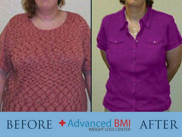 Advanced BMI Before and After 2 -280