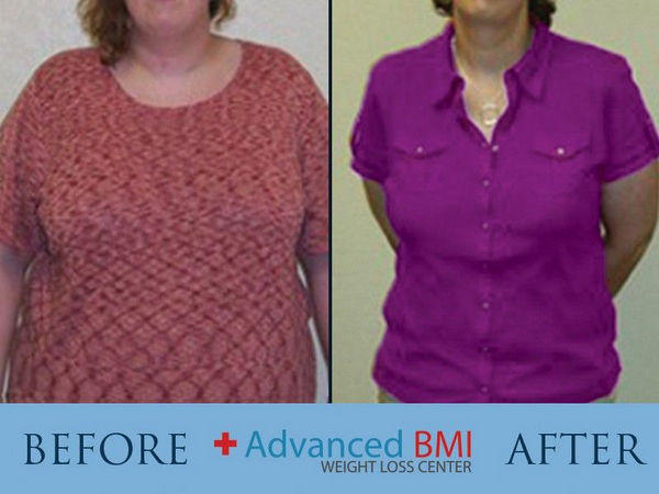 Weight Loss Surgery Before And After Advanced Bmi Lebanon Dr