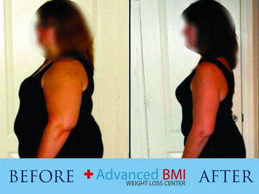 Advanced BMI before and after 1-280