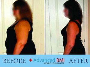 Advanced BMI before and after 1 resized