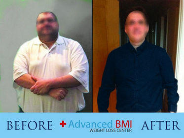 Advanced BMI before and after 3-280