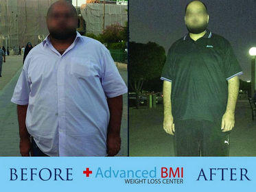Advanced BMI before and after 4-280