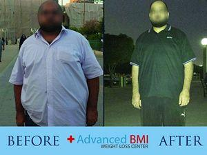Advanced BMI before and after 4-resized