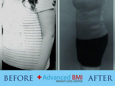 Advanced BMI before and after 5-280
