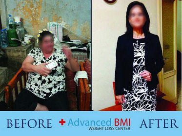 Advanced BMI before and after 6-280