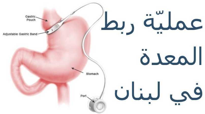 عمليّة حلقة المعدة أو عمليّة ربط المعدة في لبنان