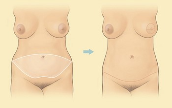 Tummy tuck or abdominoplasty in Lebanon