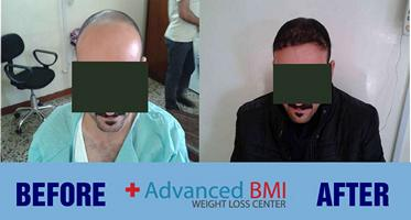 hair transplant in Lebanon 1