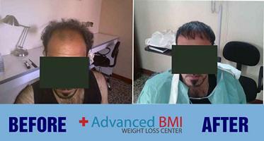 hair transplant in Lebanon 2