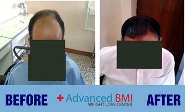 hair transplant in Lebanon 3