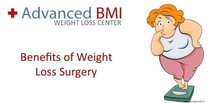 Dr Nagi Jean Safa Benefits Of Weight Loss Surgery In Lebanon