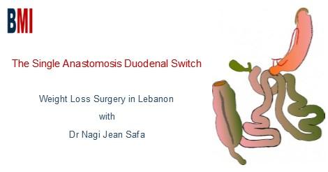 Dr Nagi Jean Safa Single Anastomosis Duodenal Switch In