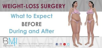 Weight-Loss Surgery What to Expect Before During and After