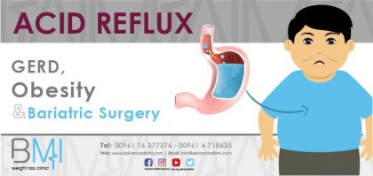 Acid Reflux, GERD, Obesity and Bariatric Surgery