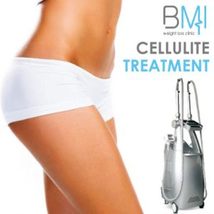 Cellulite Treatment – Ultrasonic Cavitation – Velashape