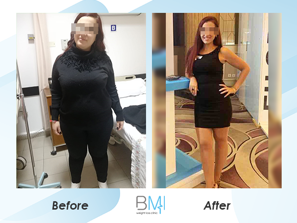 Advanced bmi Weight loss before and after 4