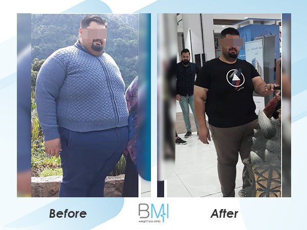 Advanced bmi Weight loss before and after 5