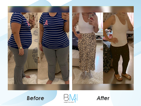 Advanced bmi Weight loss before and after 7