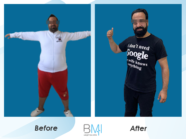 Advanced bmi Weight loss before and after 8