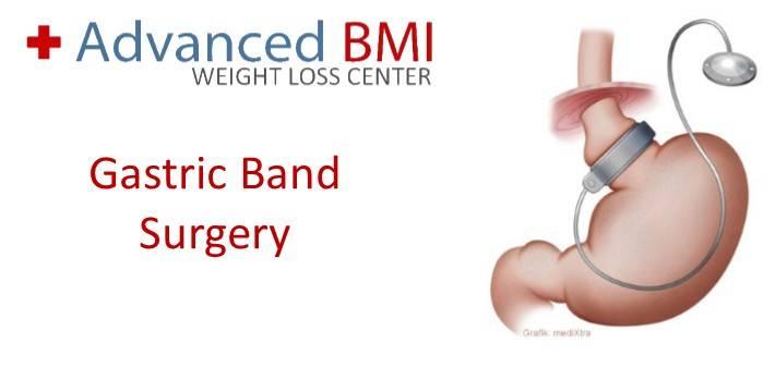 Gastric band surgery with Dr Nagi Safa