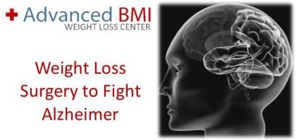Weight Loss Surgery to Fight Alzheimer
