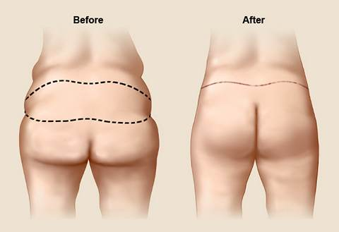 TIGHS AND BUTTOCK LIFT IN LEBANON