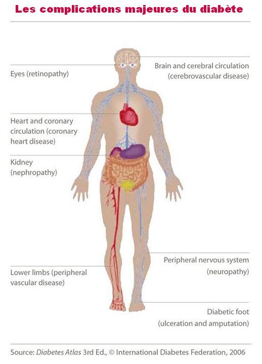 Les complications majeures du diabète