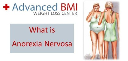 what is Anorexia Nervosa