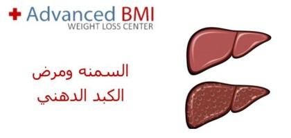 السمنه ومرض الكبد الدهني
