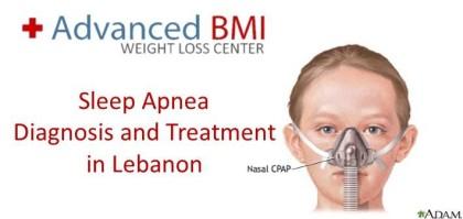 Sleep Apnea - Diagnosis and Treatment in Lebanon
