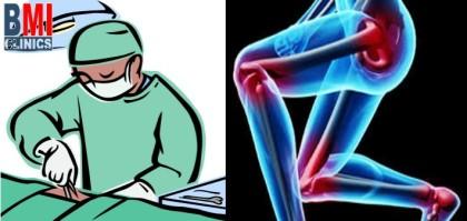 جراحات انقاص الوزن مع جراحات استبدال المفاصل