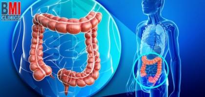 عوامل لحماية من سرطان القولون