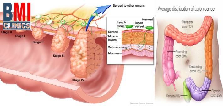 Reduce Your Risk of Colon Cancer - Advanced BMI Lebanon