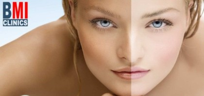 Hyperpigmentation - Top 5 Causes and Treatments - Lebanon