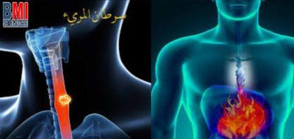 علاقة سرطان المريء وارتفاع معدل حموضة المعدة
