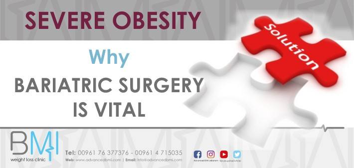 Severe Obesity Why Bariatric Surgery is Vital