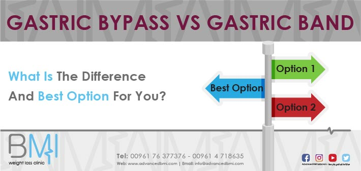 Gastric Bypass VS Gastric Band