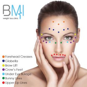 Botulinum toxin at Advanced BMI Beirut Lebanon